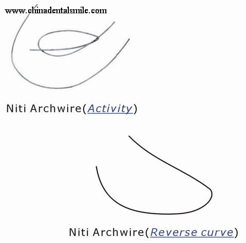 Orthodontic Activity & Reverse Curve arch wire
